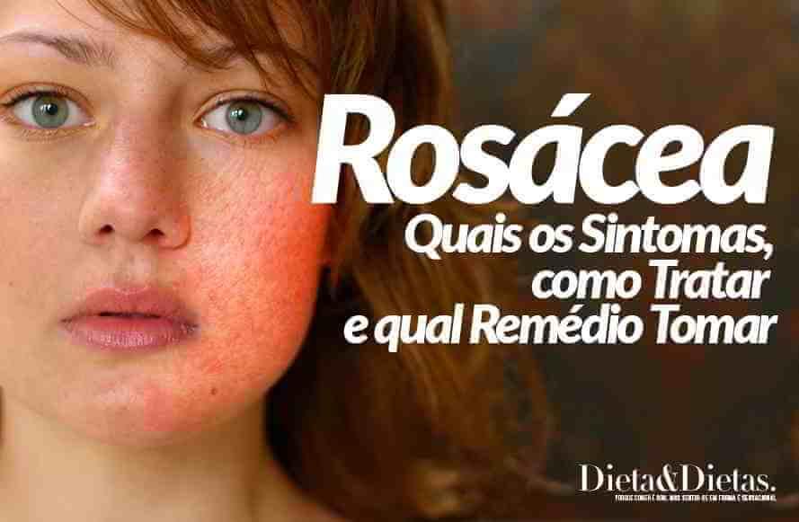 Rosácea, quais os Sintomas, como Tratar e qual Remédio Tomar