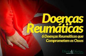 6 Doenças Reumáticas que Comprometem os Ossos