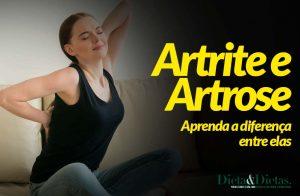 Artrite e Artrose, Aprenda a diferença entre elas