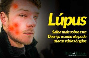 Lúpus, Saiba mais sobre esta Doença autoimunes e como ela pode atacar vários órgãos